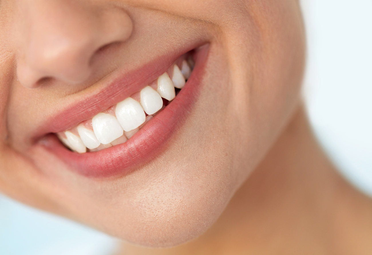 Teeth Whitening Wellsway Dental Practice